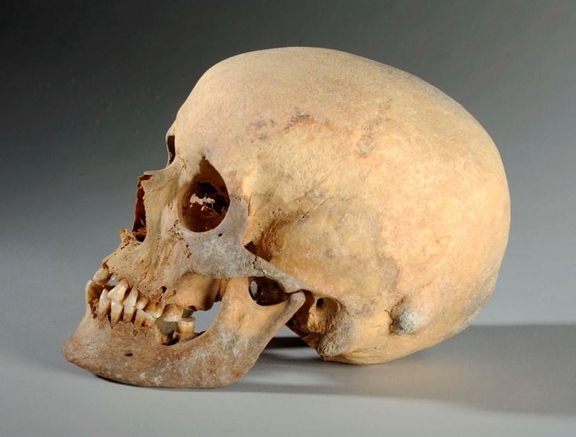 Object of the week- 2,000 year old skull: leedm.d.2010.0012.001.006e.jpg